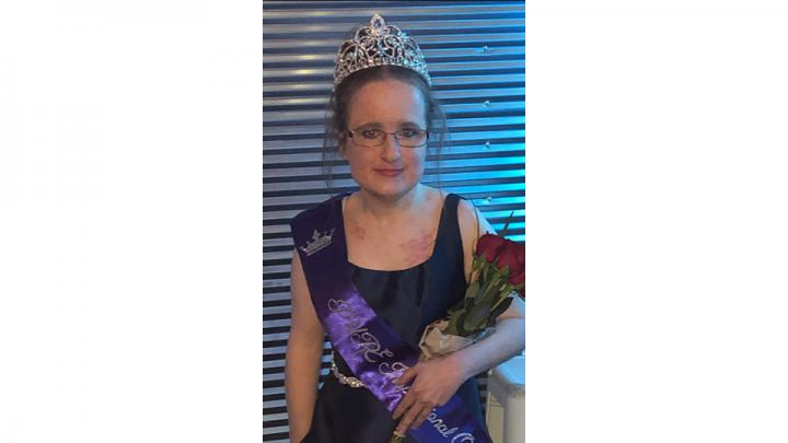 I am the pure inspirational Queen and have been for two years. I am also been made a lifetime Queen now.  I have had 15 surgeries in the first 3 years of my life and have overcome a lot of things in my life that most people would not have to face.  I have been told that even though I have been through a lot in live I am very inspirational to people that I meet and talk too.  When life gets hard I try to face it head on and have a great support system in my life and that is what I want to be for others.